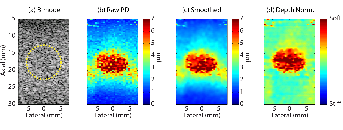 Example of B-mode and ARFI images in a tissue mimicking phantom with a soft spherical inclusion.